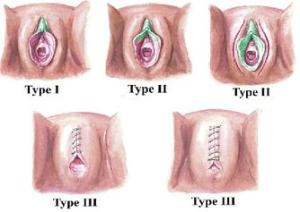 3 types of FGM